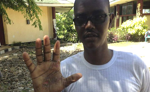 An asylum seeker shows his burnt hand after a tow-back operation by the Australian Navy