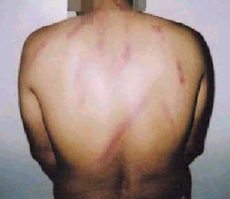 One of the detainees after the beatings
